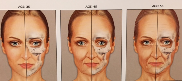 Image result for bone resorption aging face