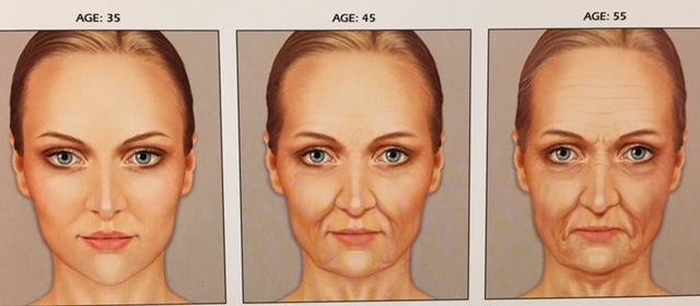 facial changes 2