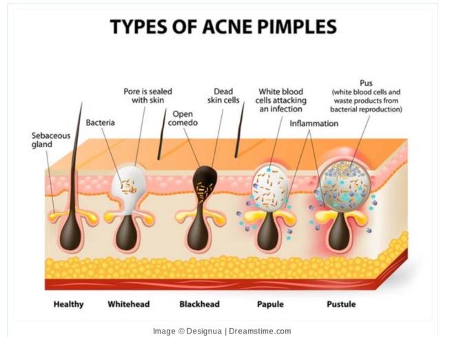 pimple 1